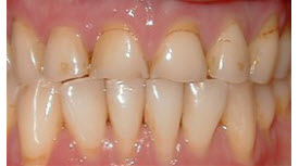 Porcelain Crowns (Caps)