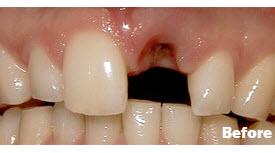 Crowns (Caps), Porcelain Crowns (Caps), and Dental Implants