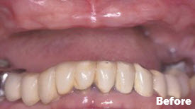 Crowns (Caps), Porcelain Crowns (Caps), Dental Implants, Dentures and Partial Dentures